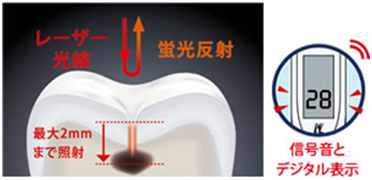 むし歯検出装置(ダイアグノデントペン)