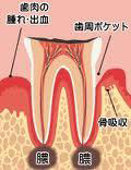 歯根嚢胞摘出(しこんのうほうてきしゅつ)手術とは