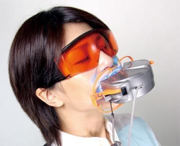 まき歯科で行う『オフィスホワイトニング』